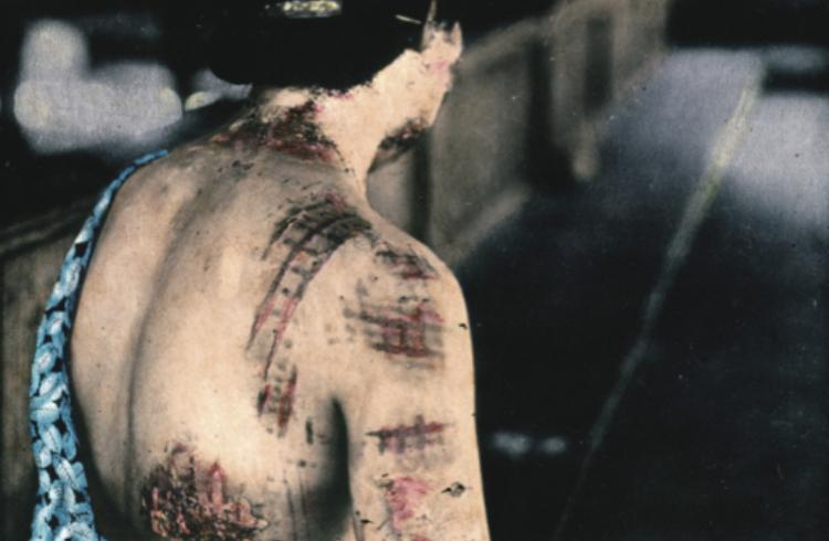 着物の柄が皮膚に焼きついた助成